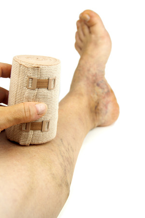 varicose veins: Varicose veins and bandage. Isolated on white background