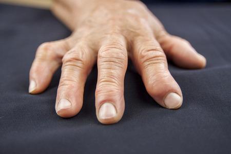 deformity: Rheumatoid arthritis hand