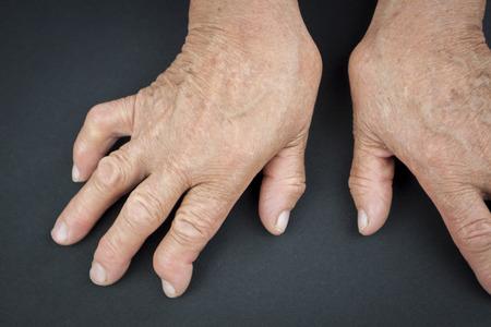 deformity: Rheumatoid arthritis hands  Macro