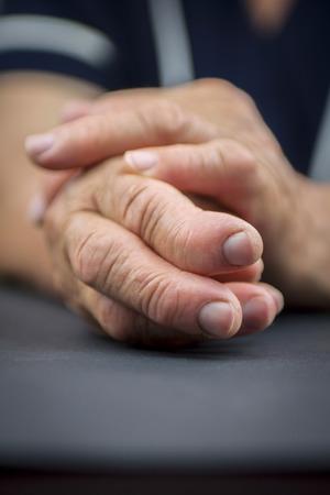 rheumatoid: Rheumatoid arthritis hand  Macro