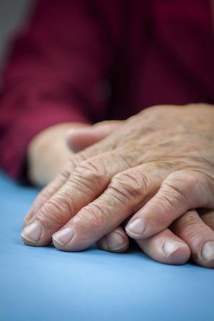 rheumatoid: Rheumatoid arthritis hands. Macro