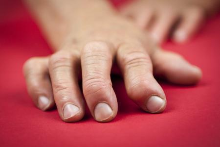Rheumatoid arthritis hands.