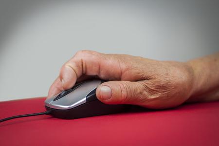 rheumatoid: Rheumatoid arthritis hand. Computer mouse
