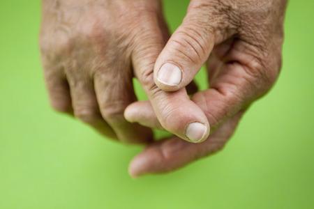 rheumatoid: Rheumatoid arthritis hands. Rheumatoid finger Stock Photo