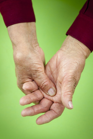deformity: Rheumatoid arthritis hands. Pain