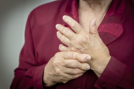 Hands Of Woman Deformed From Rheumatoid Arthritis. Pain Stock Photo - 29816747