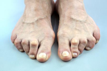 Feet Of Woman Deformed From Rheumatoid Arthritis.