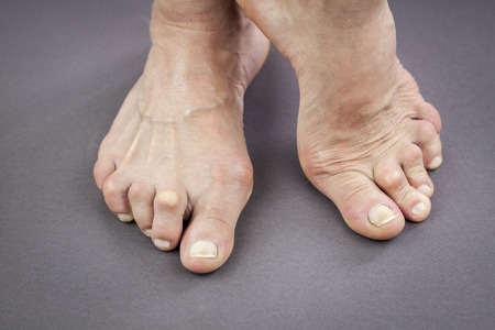 Feet Of Woman Deformed From Rheumatoid Arthritis.