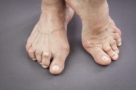 deformity: Feet Of Woman Deformed From Rheumatoid Arthritis.