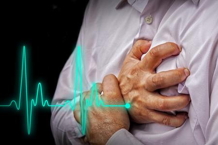 ataque al corazón: Los hombres en camisa blanca que tienen dolor en el pecho - un ataque al corazón - Línea latido Foto de archivo