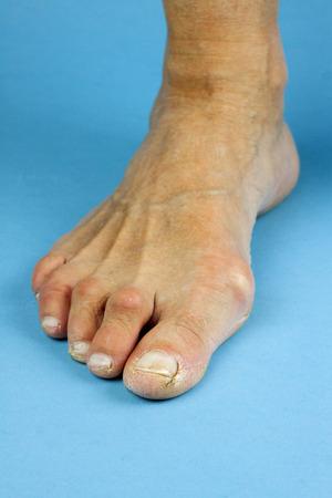 Cracked fingertips on blue background. Closeup Standard-Bild