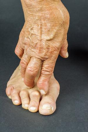 deformity: Rrheumatoid arthritis hand and toe deformities. Macro