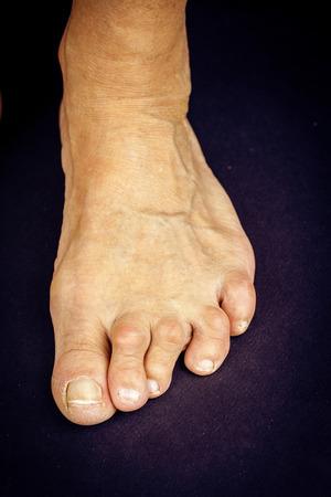 deformity: Rrheumatoid arthritis toe deformities. Macro Stock Photo