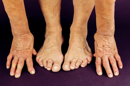 restricting: Rrheumatoid arthritis hand and toe deformities. Macro