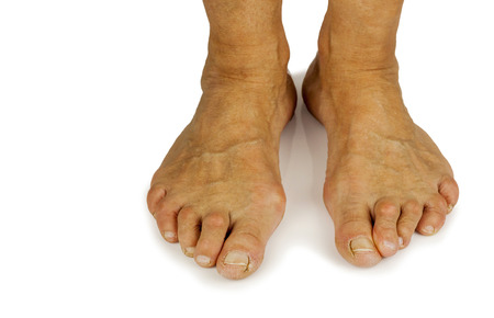 bunion: Cracked toe and bunion deformity in white backgrouynd. Copy space Stock Photo