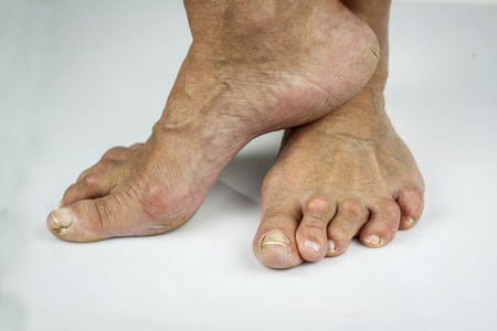 deformity: Rheumatoid arthritis ffeet. Cracked skin toe