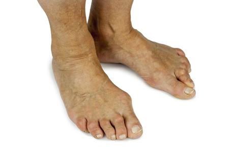 deformity: Bunion deformity. Feet deformity. Close up