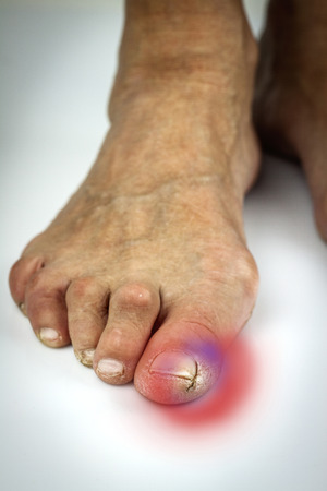 denoted: Cracked toe. Macro. White background. Pain denoted by the red colour Stock Photo