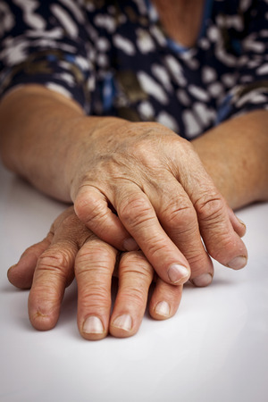 deformity: Hands Of Woman Deformed From Rheumatoid Arthritis. Finger without nail Stock Photo