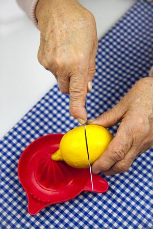 rheumatoid: Rheumatoid arthritis hands and lemon. Fruit and health Stock Photo