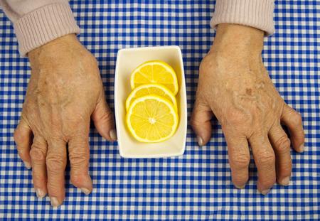 deformity: Rheumatoid arthritis hands and lemon. Fruit and health Stock Photo