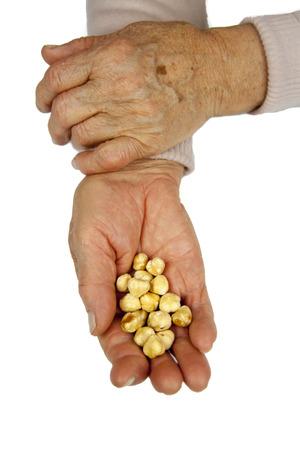 rheumatoid: Rheumatoid arthritis hands. Hazelnuts in hands Stock Photo