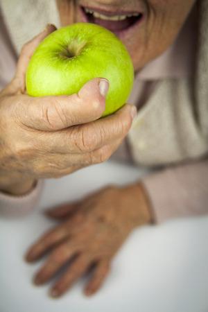 rheumatoid: Rheumatoid arthritis hands and fruits. Apple in hand