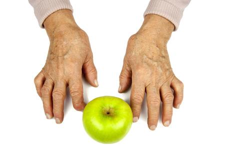 rheumatoid: Rheumatoid arthritis hands and fruits. Apple