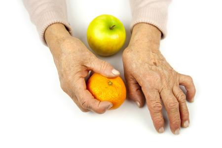 Rheumatoid arthritis hands and fruits. Tangerine and apple Standard-Bild