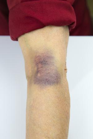 hematoma: Large hematoma on human arm. Injection bruises