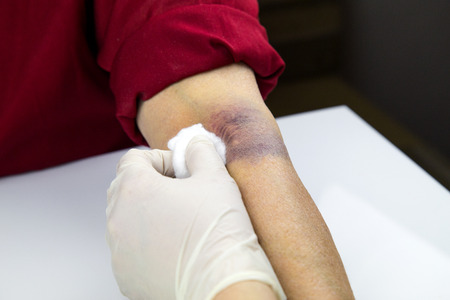 hematoma: Large hematoma on human arm. Injection bruises. Doctor and patient