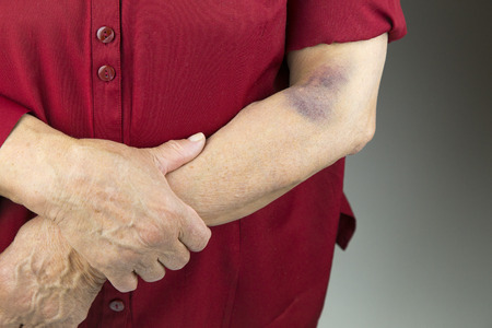 contusion: Large hematoma on human arm. Injection bruises