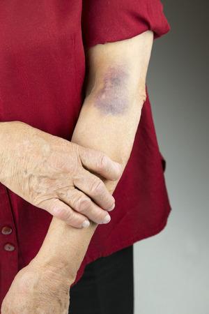 contusion: Large hematoma on human arm. Injection bruises