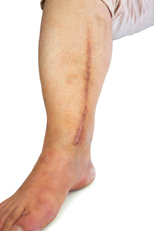 the scars: Human leg with postoperative scar of cardiac surgery. Medical concept. Heart disease. Isolated Stock Photo