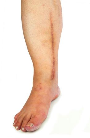 cardiac surgery: Human leg with postoperative scar of cardiac surgery. Medical concept. Heart disease. Isolated Stock Photo