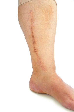 Human leg with postoperative scar of cardiac surgery. Medical concept. Heart disease. Isolated Stock Photo