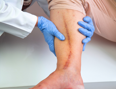 laceration: Human leg with postoperative scar of cardiac surgery. Medical concept. Heart disease