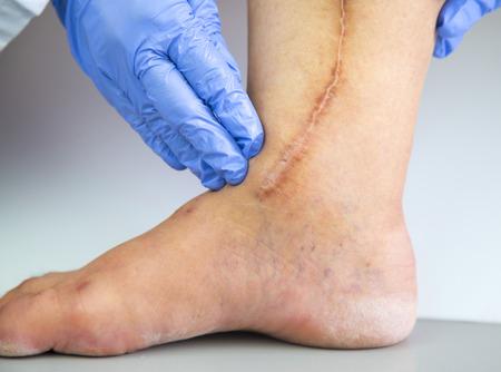 dolor de pecho: pierna humana con la cicatriz postoperatoria de la cirugía cardíaca. Concepto médico. Enfermedad del corazón