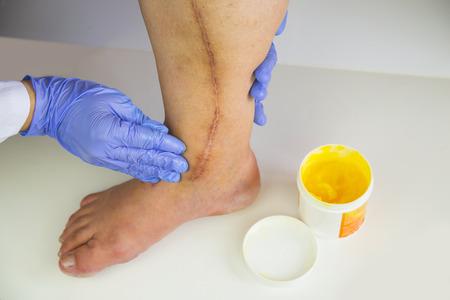 stenosis: Human leg with postoperative scar of cardiac surgery. Medical concept. Treatment