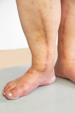 cardiac surgery: Human leg with postoperative scar of cardiac surgery. Medical concept. Heart disease
