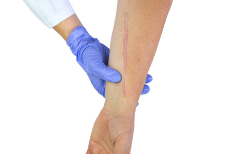 wound care: Human arm with postoperative scar of cardiac surgery. Medical concept. Heart disease. Isolated