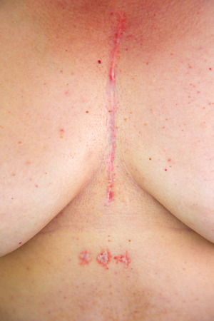stenosis: Womans chest with postoperative scar of cardiac surgery. Medical concept. Heart disease