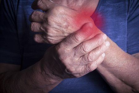 osteoporosis: Hand Deformed From Rheumatoid Arthritis. Studio shot. Pain condition. In red