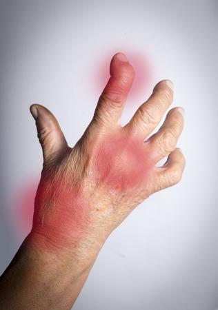 Hand Deformed From Rheumatoid Arthritis. Studio shot. Pain condition. In red