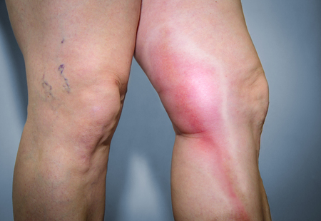 inflamation: Thrombophlebitis in human leg. Painful inflamation of the leg veins. Medical issue