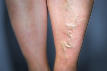 Thrombophlebitis in human leg. Painful inflamation of the leg veins. Medical issue