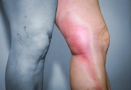 인간의 다리에 혈전 정맥염. 다리 정맥의 고통스러운 염증. 의료 문제