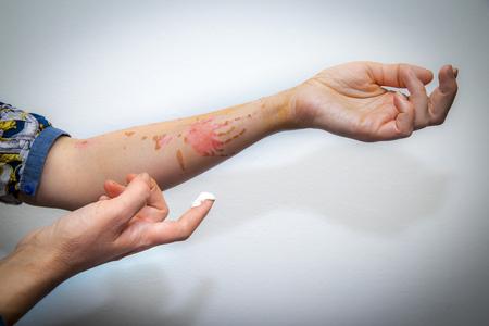 Behandelen menselijke arm verbrand met kokende olie met crème voor brandwonden Stockfoto