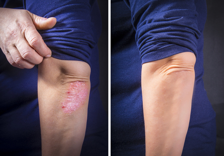 Psoriasis on lady's elbow before and after treatment. Close up
