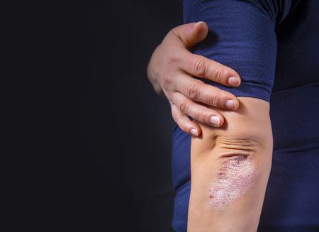 Psoriasis on lady's elbow on dark background. Close up Stock Photo